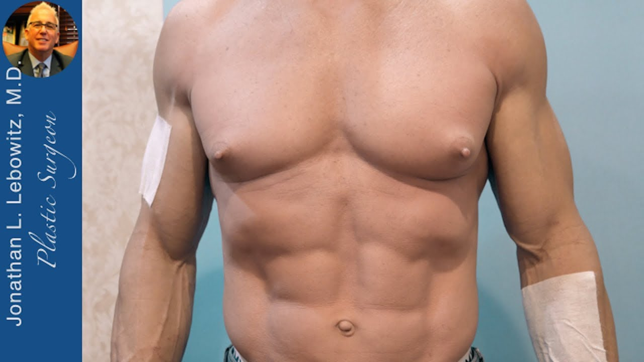 How To Deal With Very Bad steroids