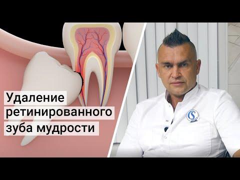 Ретинированный зуб мудрости - удаление за 3 минуты.