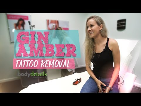 My Tattoo Removal Update Video | Gin Amber | Body Details