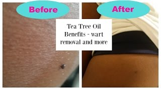 Tea Tree Oil Uses: Wart Removal and More
