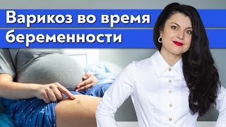 Как бороться с варикозом беременным? / Какие симптомы варикоза при беременности?