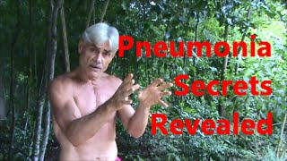 Pneumonia Secrets Revealed