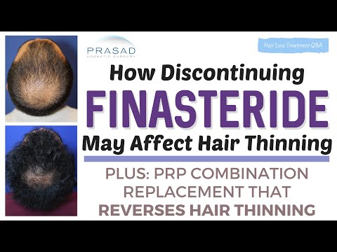 how-discontinuing-finasteride-can-affect-hair-thinning,-and-an-alternative-to-manage-hair-loss