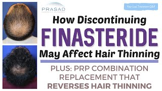 How Discontinuing Finasteride can Affect Hair Thinning, and an Alternative to Stop Hair Loss