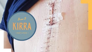 Kirra's Story on her Scoliosis