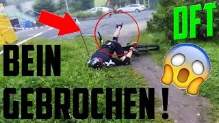 BEIN GEBROCHEN DOWNHILL CRASH (Clickbait aber trotzdem gut :D) Fails Compilation