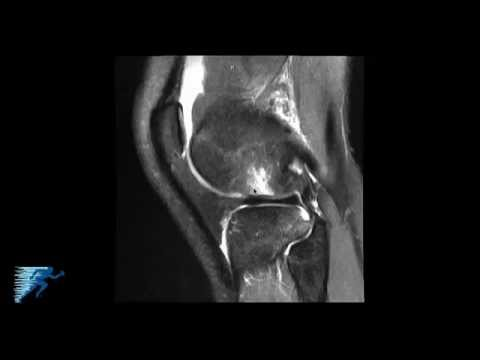 How to Read Knee MRI of ACL Tear | Anterior Cruciate Ligament Injury | Colorado Knee Surgeon thumbnail