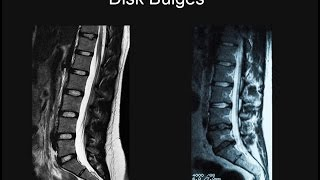 Back Pain - Part 1: Why MRI Scans Are Important.