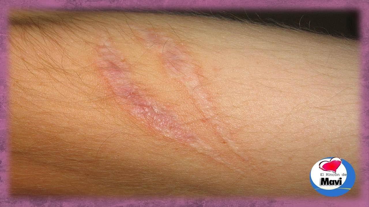 Remedios caseros para quitar o atenuar las cicatrices - Como quitar las humedades de la pared ...