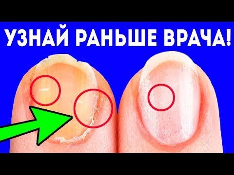 СРОЧНО! Если на ногтях появилось это, сразу съешь... Диагноз по ногтям