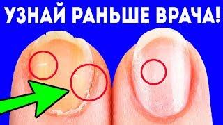СРОЧНО Если на ногтях появилось это сразу съешь Диагноз по ногтям