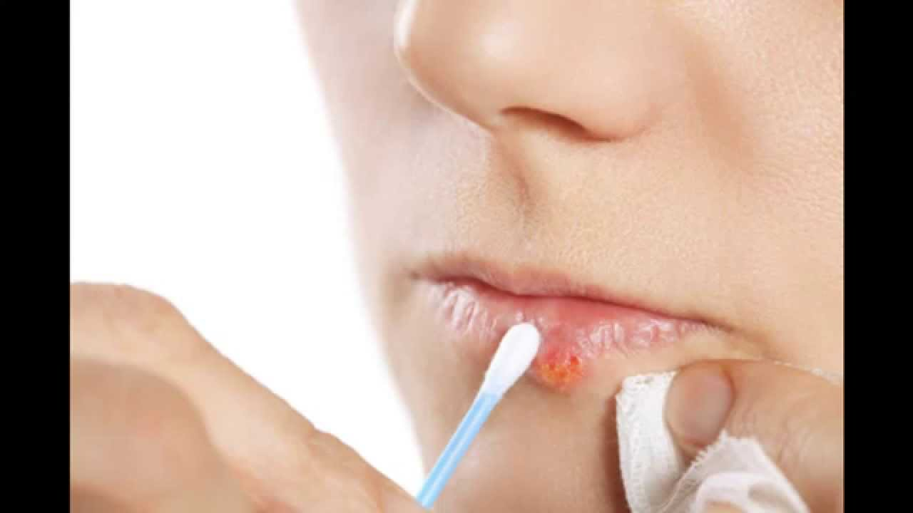 How To Get Rid Of Cold Sores + Home Remedies For Cold Sores + Cold Sore  Remedies