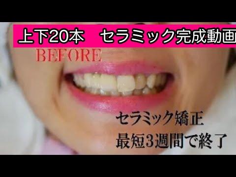 前歯の出っ歯感と歯の黄色み、ガタガタとした歯並びが気になる女性