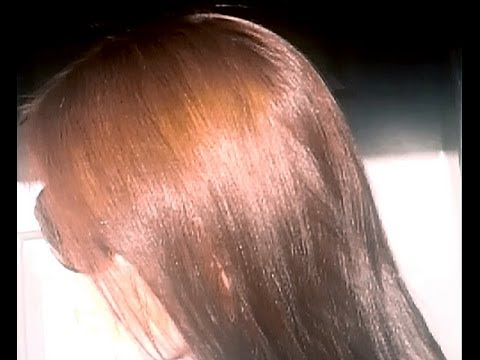 Выпадают ли волосы после дред