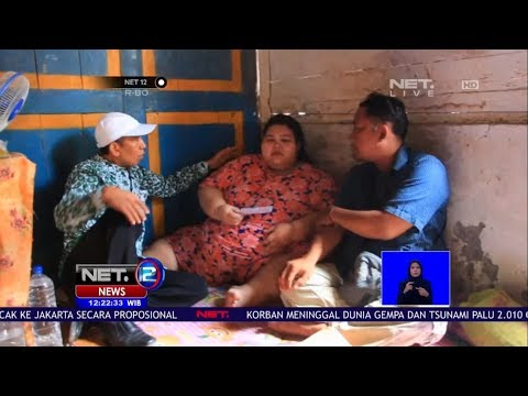 Menderita Obesitas, Gadis Asal Lamongan Terpaksa Putus Sekolah   NET12