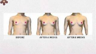 Breast Enhancement Cream - Breast Firming Cream - Breast Enhancement - Bosom Blossom Thumbnail