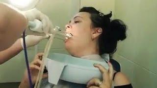 видео Как лечить стрептококк в горле – как его вывести и избавиться