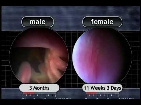 The Biology of Prenatal Development: 11 weeks