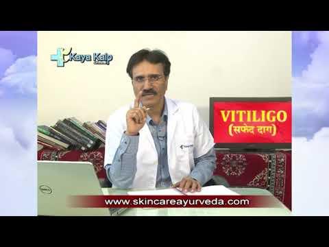 Treatment For White Patches | Vitiligo Treatment Procedure | Ayurveda Medication For Vitiligo India