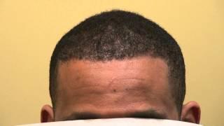 FUE African American Hair Loss Restoration Surgery 1 Yr Follow Up Dr. Diep www.mhtaclinic.com