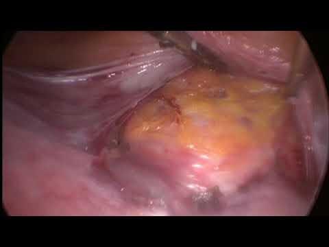 Rahim Sarkma ameliyatı-Laparoskopik...
