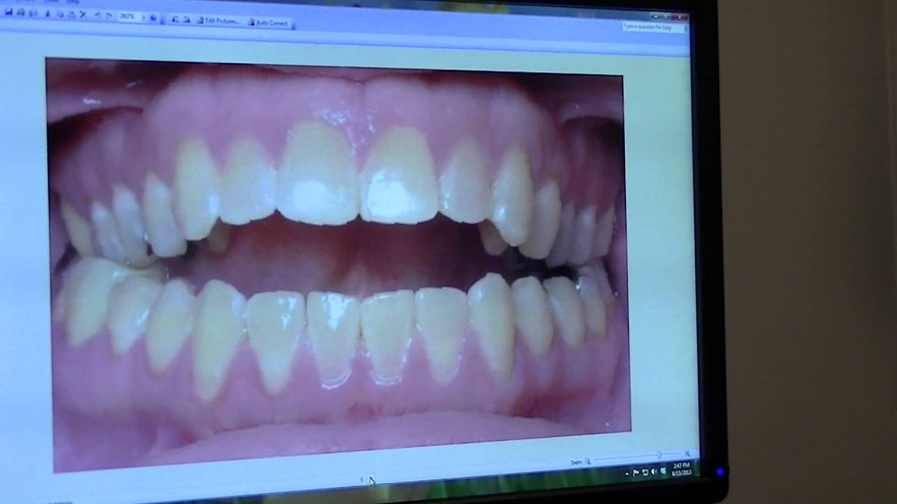 Orthodontist NYC Fixes Open Bite with non-surgical Alf Appliance ...