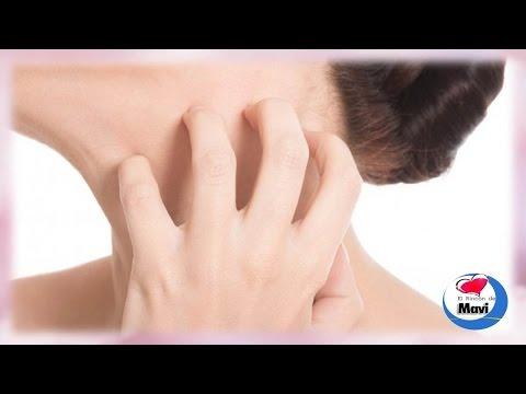 Como aliviar los picores o comezon en la piel