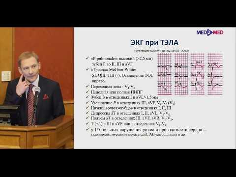 Диагностика и лечение ТЭЛА Гаврилов Ю.В.