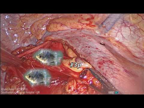Recurrent Laryngeal Nerves and The Thoracic Surgeon