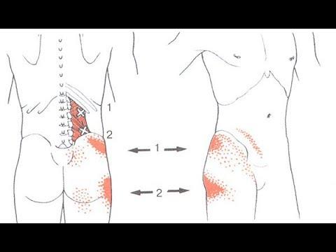 Упражнения при болях в коленях: ЛФК если болят суставы