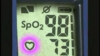 Обзор пульсоксиметра PulseOx 7500H