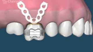 Металлокерамика(Металлокерамика - это лечение ваших зубов, точнее сказать их восстановление. Только благодаря металлокера..., 2015-12-26T19:43:10.000Z)