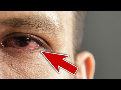 Лопаются Сосуды в Глазах - Причины и Способы Лечения в Домашних Условиях