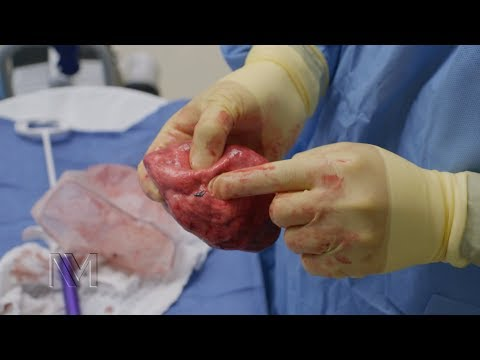 Robotic Lung Cancer Surgery   Inside the OR
