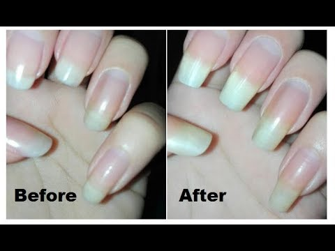 DIY Nail Hardener Tutorial: How to Make Your Own Nail Strengthener ...