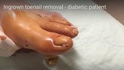 hqdefault - Diabetic Clipping Toenails