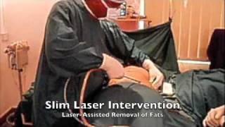 Slim Laser Intervention - VIP Laser Clinic - Mauritius.m4v