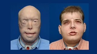Amazing face transplant restores faceless firefighter's faith in life HD