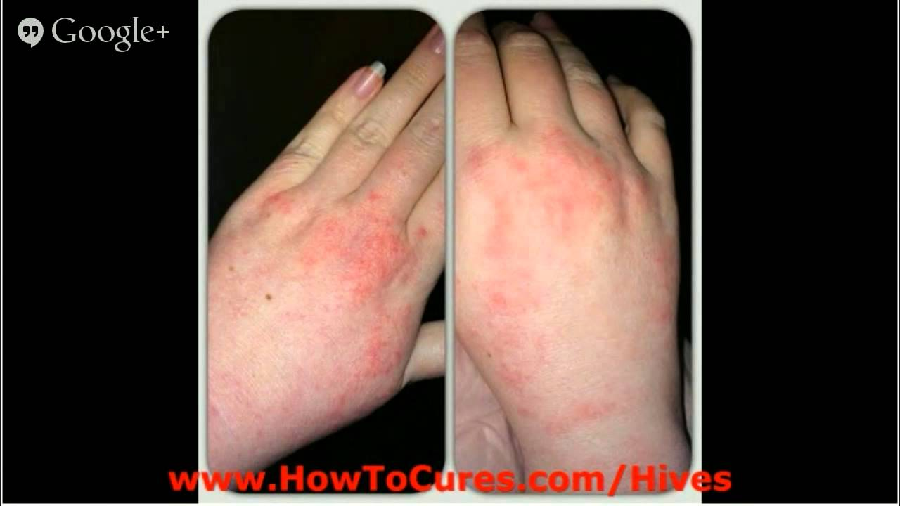 what is the definition of urticaria