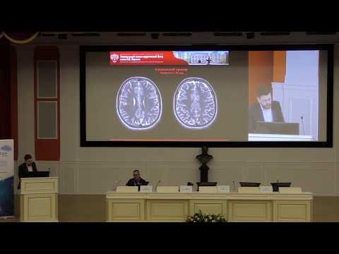 Часть 2. Конференция ЭПИЛЕПСИЯ 2018 'Прехирургическая диагностика и хирургическое лечение эпилепсии'