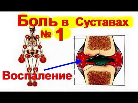 Боль в Суставах ! Лечение суставов- как снять воспаление | № 1  #больвсуставах  #edblack