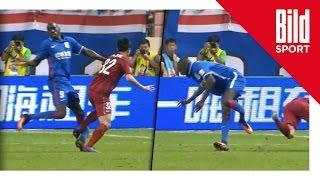 Horror-Verletzung - Demba Ba bricht sich das Bein