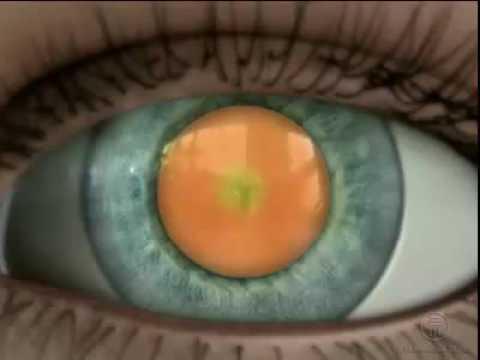 Ядерная катаракта - лечение в клинике Визион
