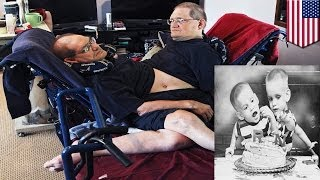 Senior citizen conjoined twins to set record as longest lived