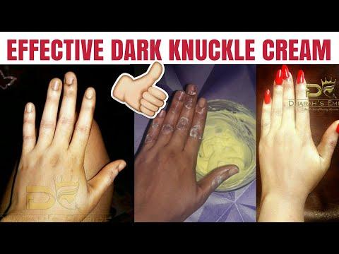 How To Make An Effective Dark Knuckle Cream | Effective Dark Knuckles Scrub