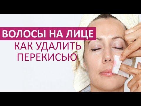 🔴  КАК УДАЛИТЬ ВОЛОСЫ НА ЛИЦЕ ПЕРЕКИСЬЮ ВОДОРОДА  ★ Women Beauty Club