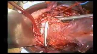 Cervical carcinoma hysterectomy