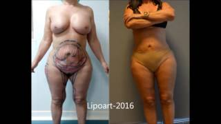 Repeat youtube video Casos de Lipoescultura - 3
