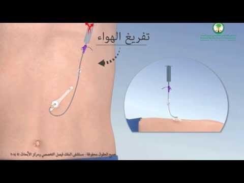 Gastrostomy Feeding Tube أنبوب التغذية (ميكي) عبر جدار البطن