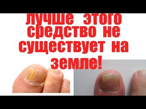 Копеечное сильнейшее средство от грибка ногтей  Вылечить Грибок на ногах и ногтях  А ты это знал?